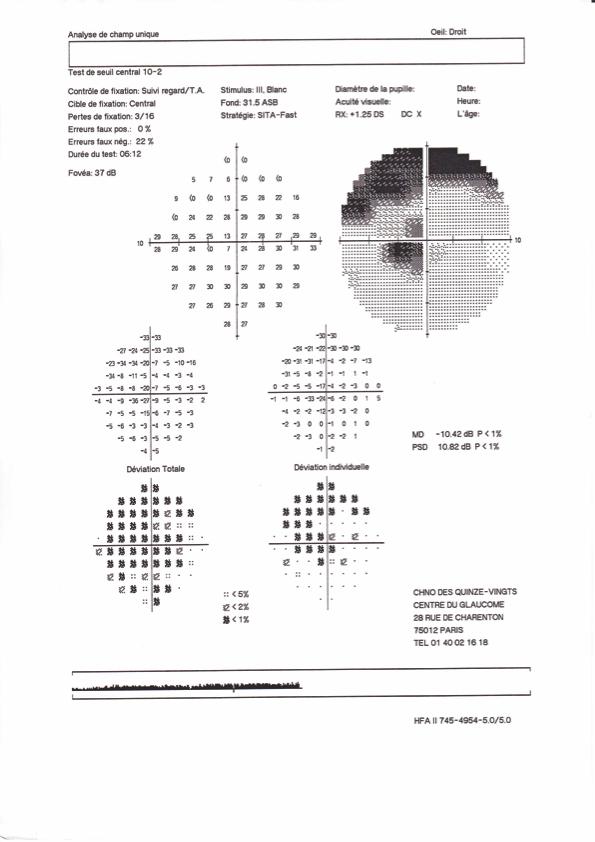 Glaucome - Hôpital - 15-20